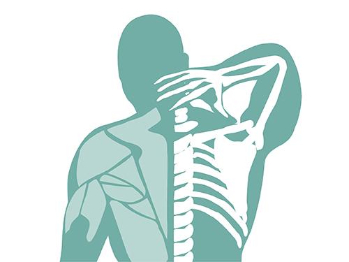 Sprain and strain injury graphic